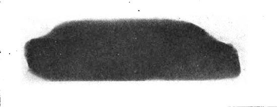 Radiograph image